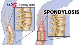 Spondylosis