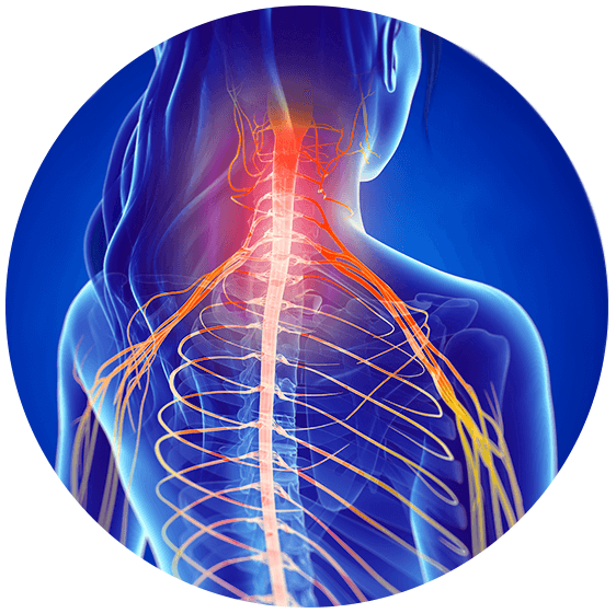 Trapped Nerve Relief - An Overview